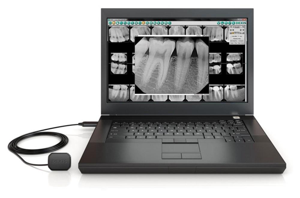Dexis Platinum Digital Radiography Sensor with Software